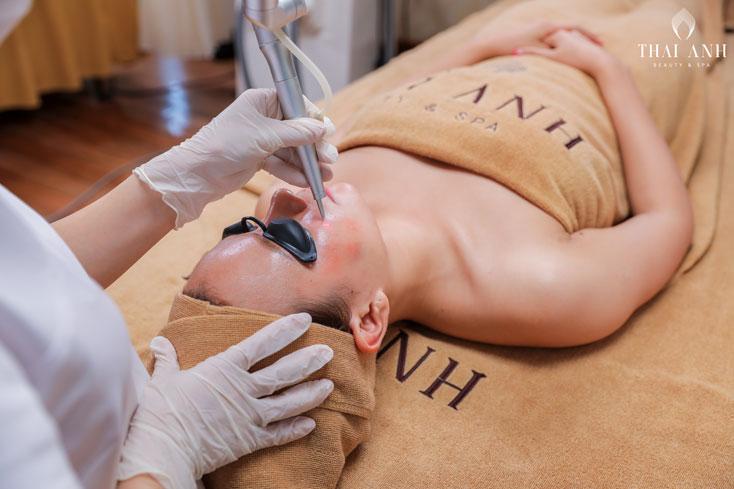 Cải thiện khả năng phục hồi của da nhờ công nghệ Laser
